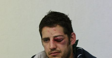 Roche: fractured eye socket