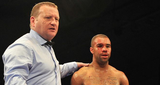 Rendall Munroe: Clash of heads stopped first fight with Scott Quigg