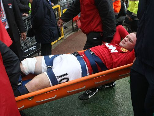 Rooney: Injured against Fulham