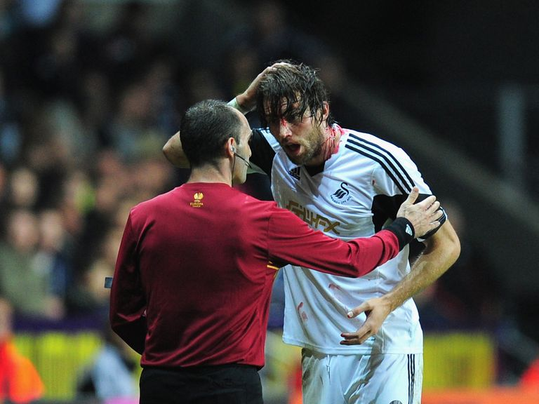 Michu: Played on after suffering a cut head