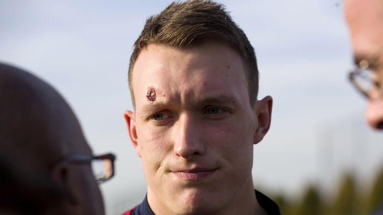 Phil Jones: Sporting new head wound