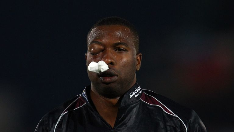 Kieron Pollard: Left looking a bit of a mess after being struck in the face whilst batting