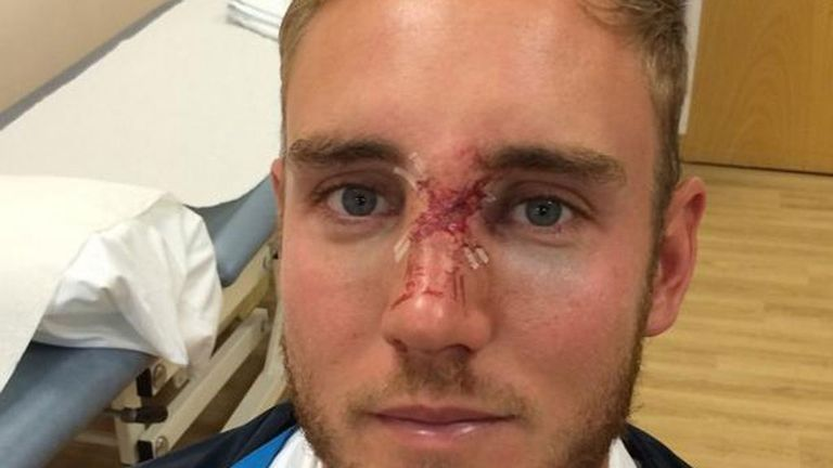 Stuart Broad: Tweeted a picture of his facial injury on Sunday