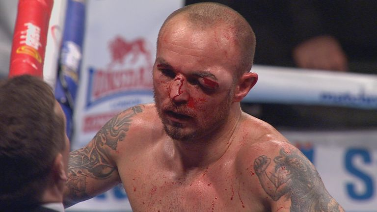 Kevin Mitchell can come again, says Jim Watt