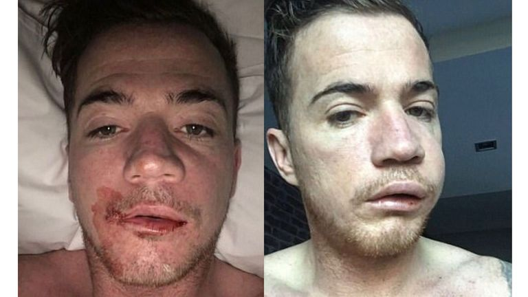 Ross McCormack is out for the rest of the season after surgery to remove cysts from his jaw