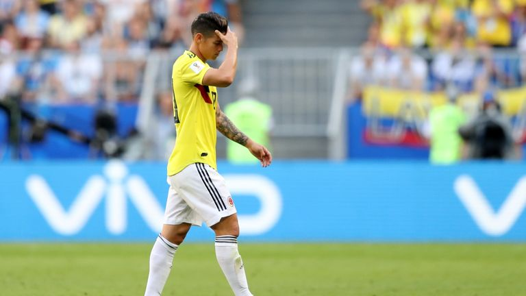 James Rodriguez hobbled off with 31 minutes gone of Colombia's win over Senegal