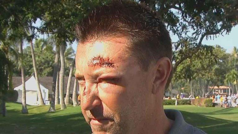 The Australian golfer was mugged in Hawaii earlier this year