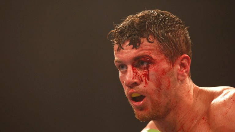 Gary Corcoran sustained a nasty cut against Liam Williams