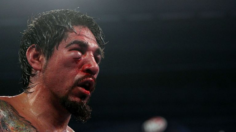 Antonio Margarito sustained damage against Manny Pacquaio and Miguel Cotto