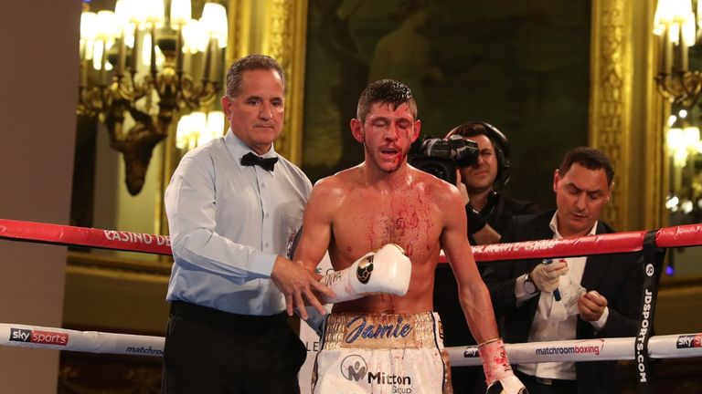 Jamie McDonnell suffered a nasty cut above his left eye after an accidental clash of heads with Liborio Solis