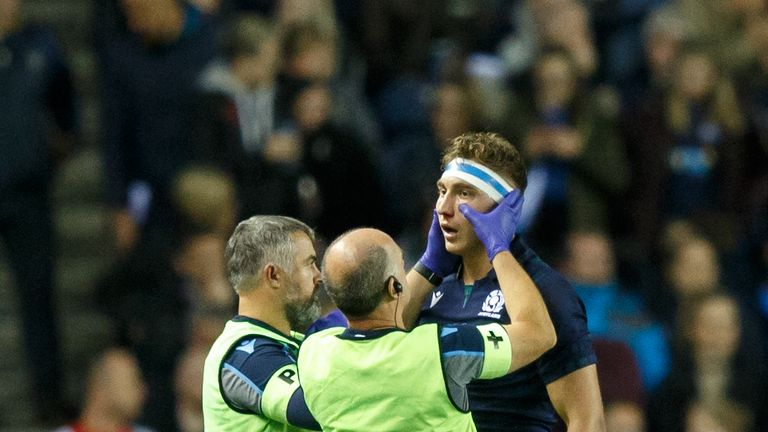 Jamie Ritchie was subbed off after 15 minutes of Scotland's clash against Georgia