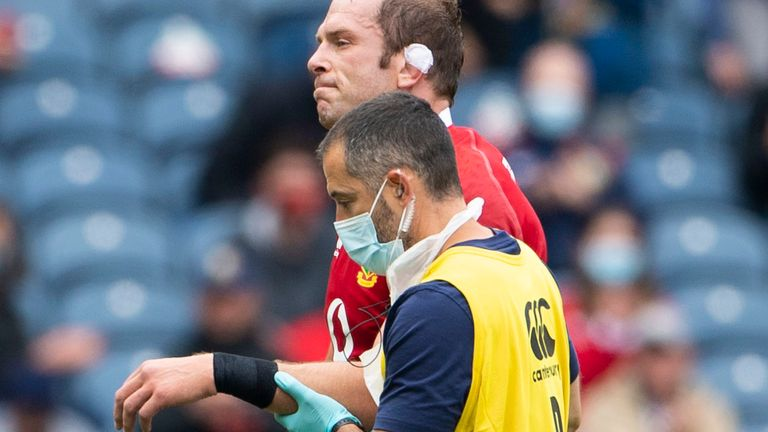 Alun Wyn Jones left the field with an injury early on in the fixture